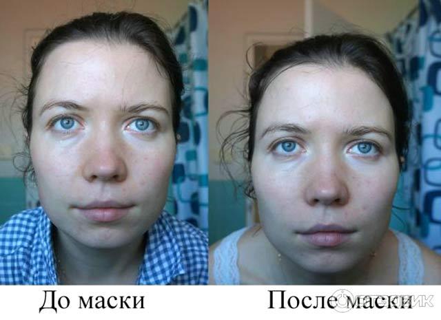 глина от прыщей на лице до и после